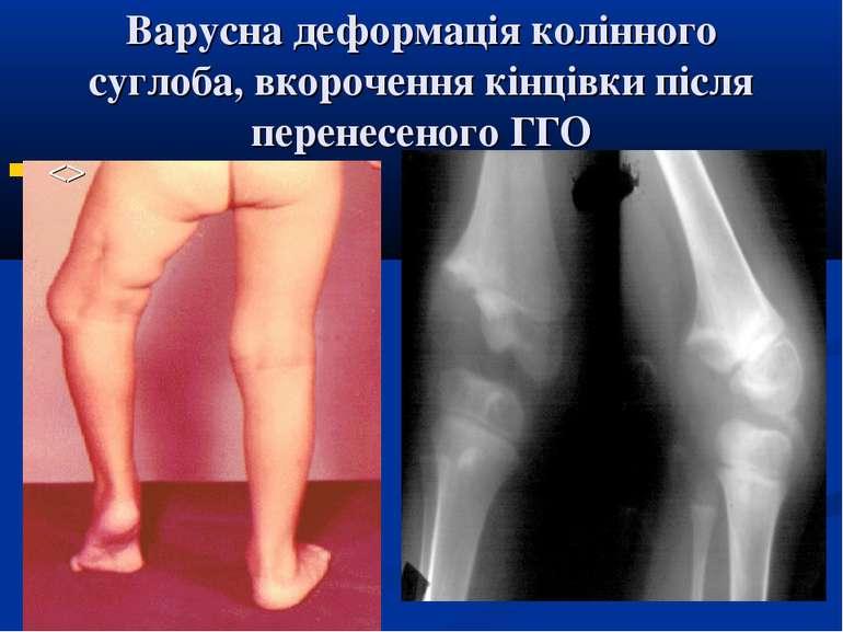 Варусна деформація колінного суглоба, вкорочення кінцівки після перенесеного ГГО