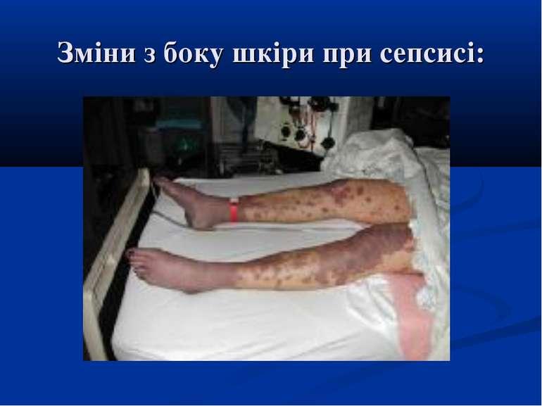 Зміни з боку шкіри при сепсисі: