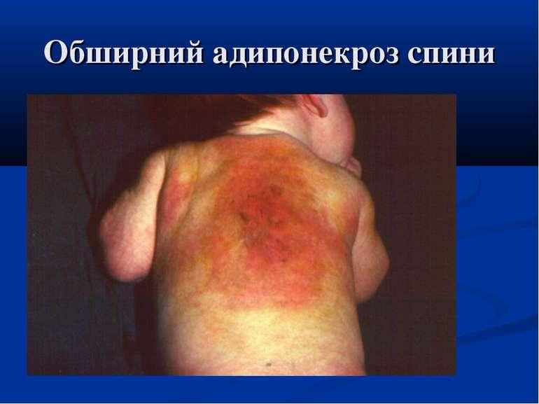 Обширний адипонекроз спини