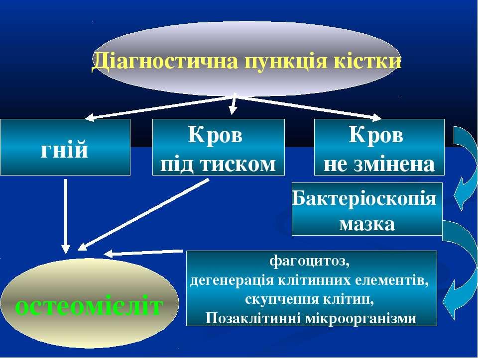Діагностична пункція кістки гній Кров під тиском Кров не змінена Бактеріоскоп...