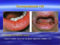 Захворювання губ Ексфоліативний хейліт - Смуги тонких лусочок на межі червоно...