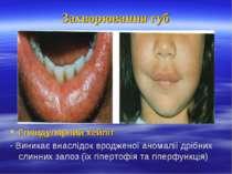 Захворювання губ Гляндулярний хейліт - Виникає внаслідок вродженої аномалії д...