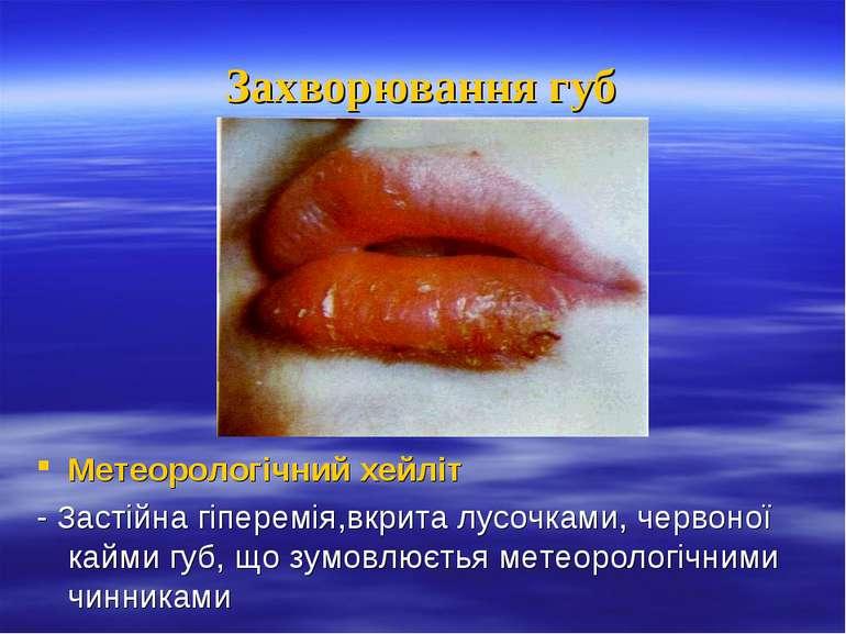Захворювання губ Метеорологічний хейліт - Застійна гіперемія,вкрита лусочками...