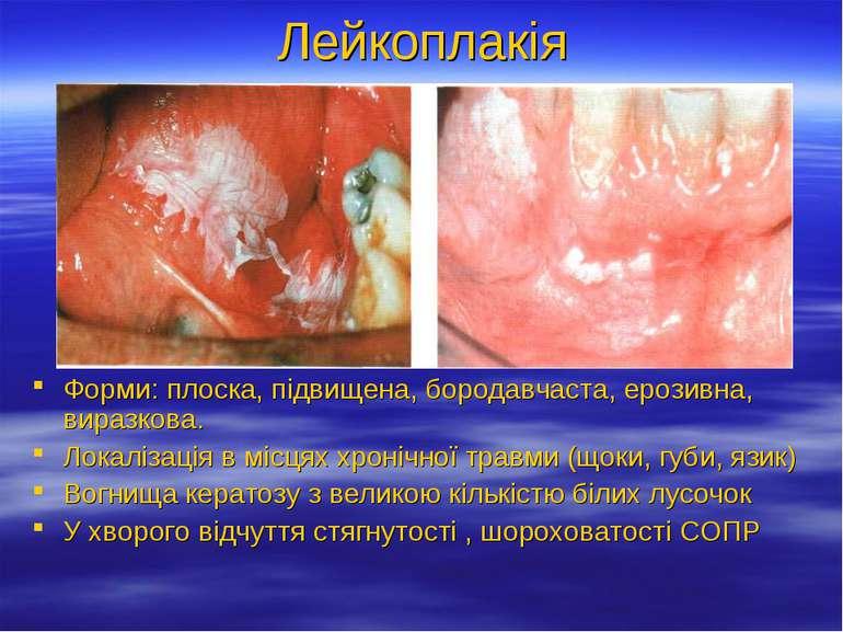 Лейкоплакія Форми: плоска, підвищена, бородавчаста, ерозивна, виразкова. Лока...