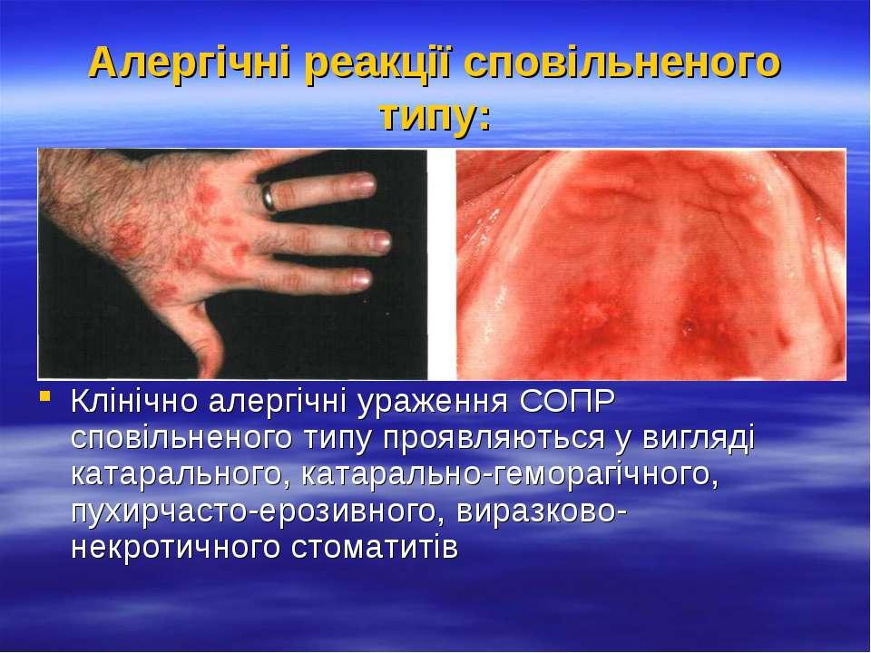 Алергічні реакції сповільненого типу: Клінічно алергічні ураження СОПР сповіл...