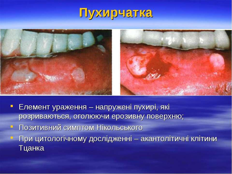 Пухирчатка Елемент ураження – напружені пухирі, які розриваються, оголюючи ер...