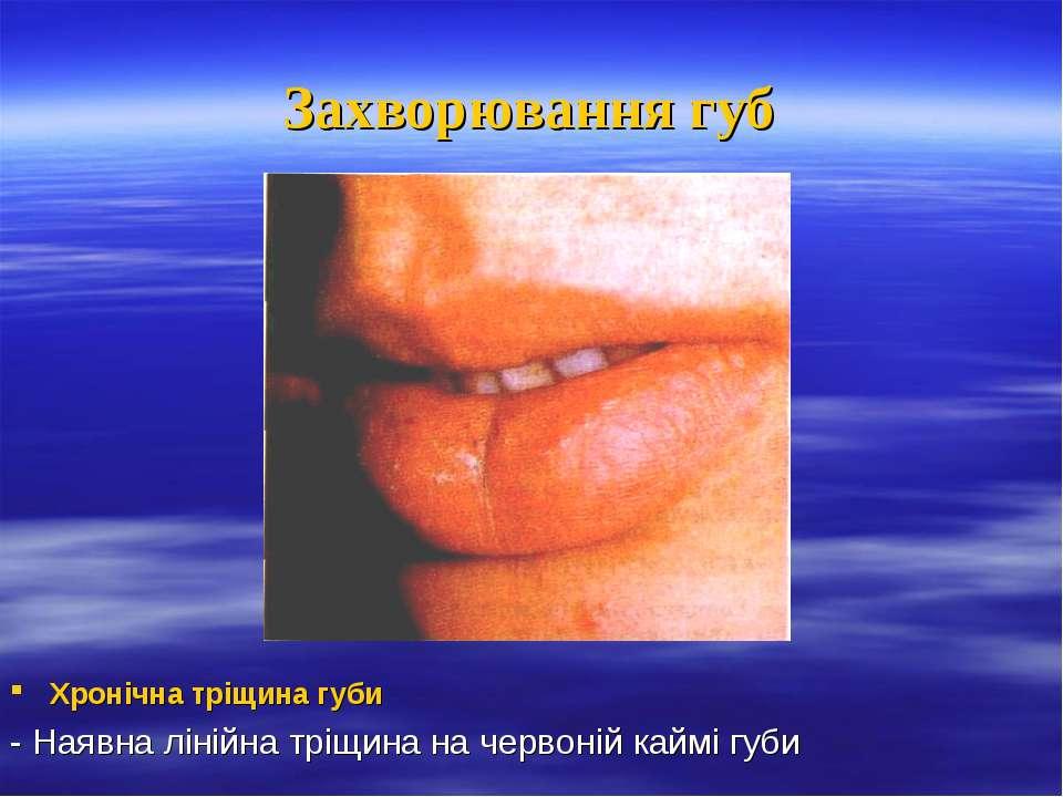 Захворювання губ Хронічна тріщина губи - Наявна лінійна тріщина на червоній к...