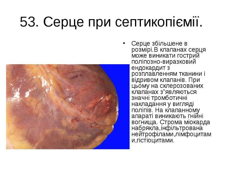 53. Серце при септикопіємії. Серце збільшене в розмірі.В клапанах серця може ...