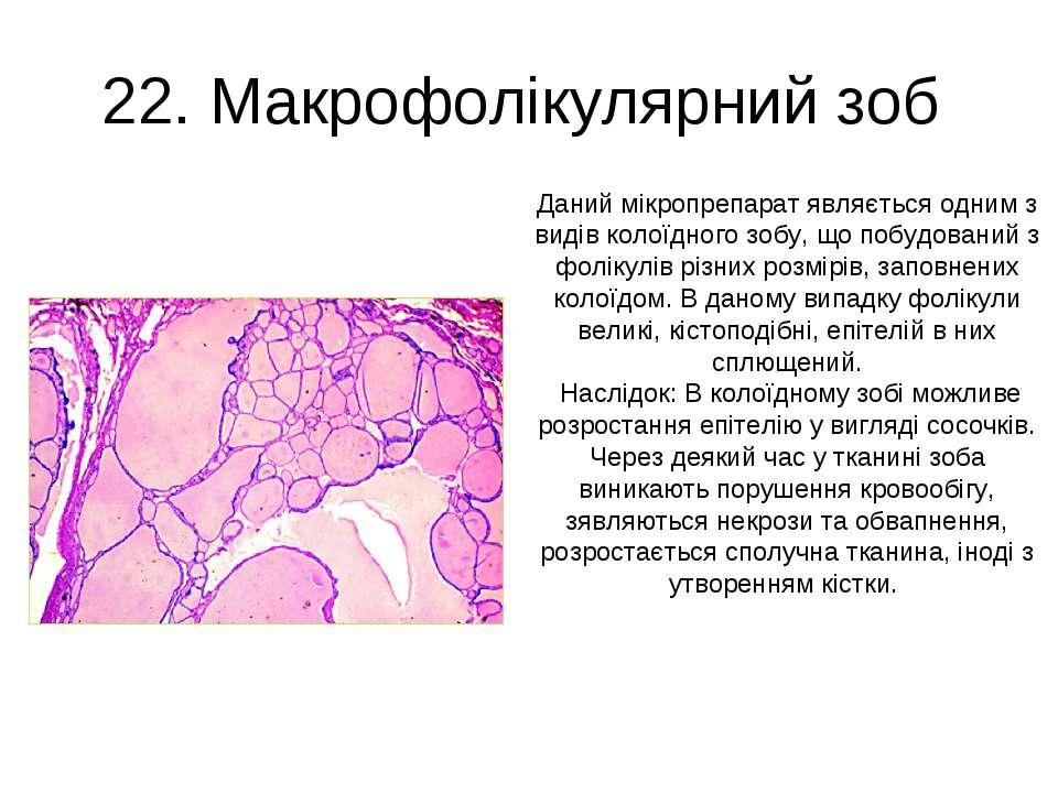22. Макрофолікулярний зоб Даний мікропрепарат являється одним з видів колоїдн...