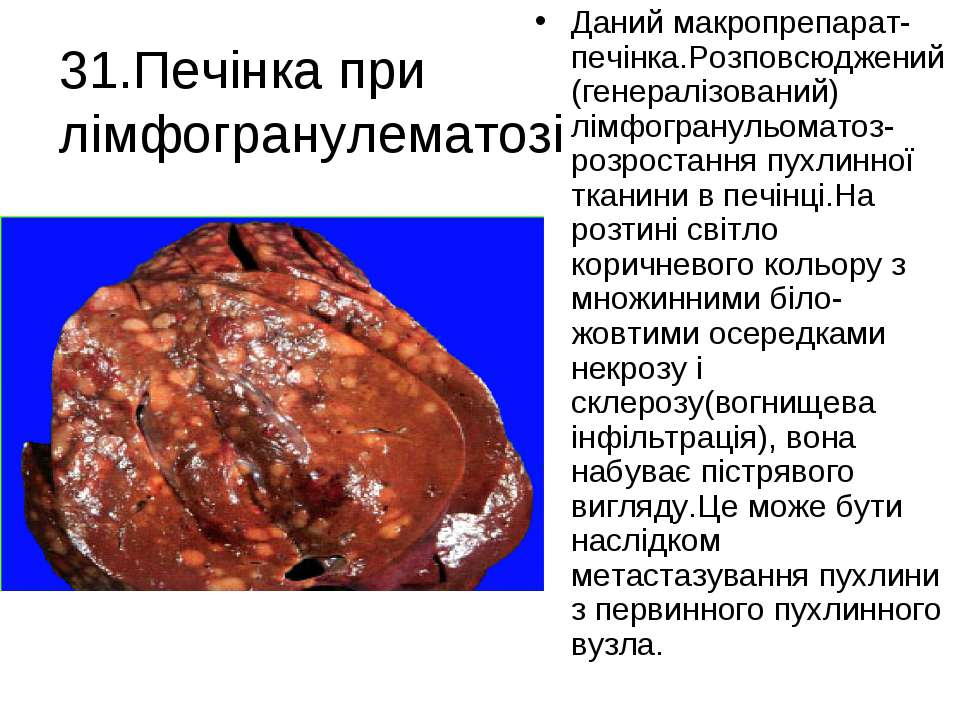 31.Печінка при лімфогранулематозі Даний макропрепарат-печінка.Розповсюджений(...