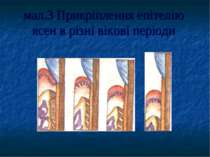 мал.3 Прикріплення епітелію ясен в різні вікові періоди