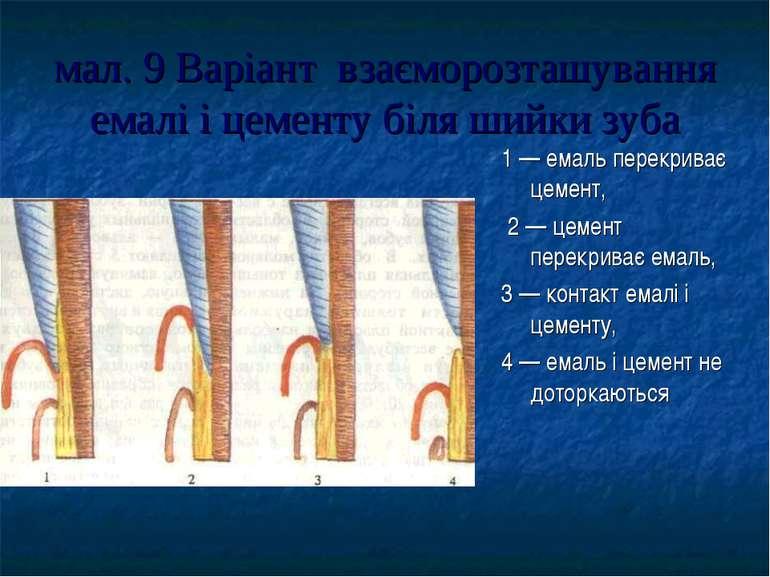 мал. 9 Варіант взаєморозташування емалі і цементу біля шийки зуба 1 — емаль п...