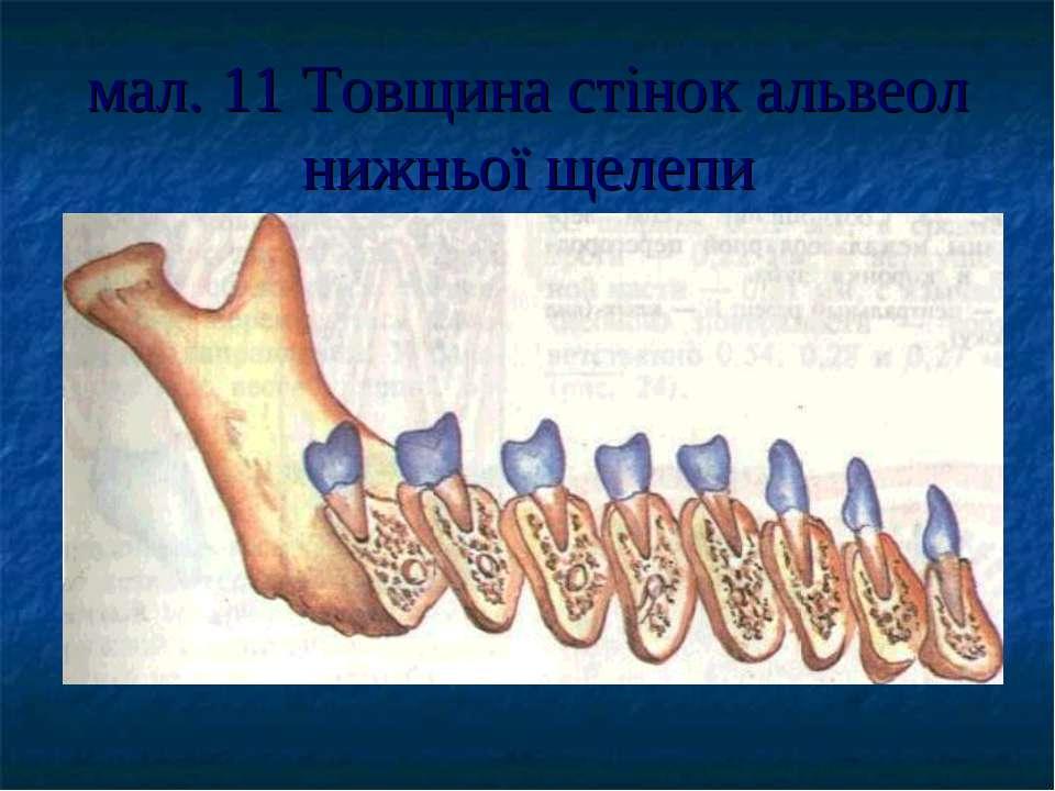 мал. 11 Товщина стінок альвеол нижньої щелепи