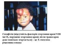 Гемофілія (відсутність факторів згортання крові VIII чи IX, порушене згортанн...