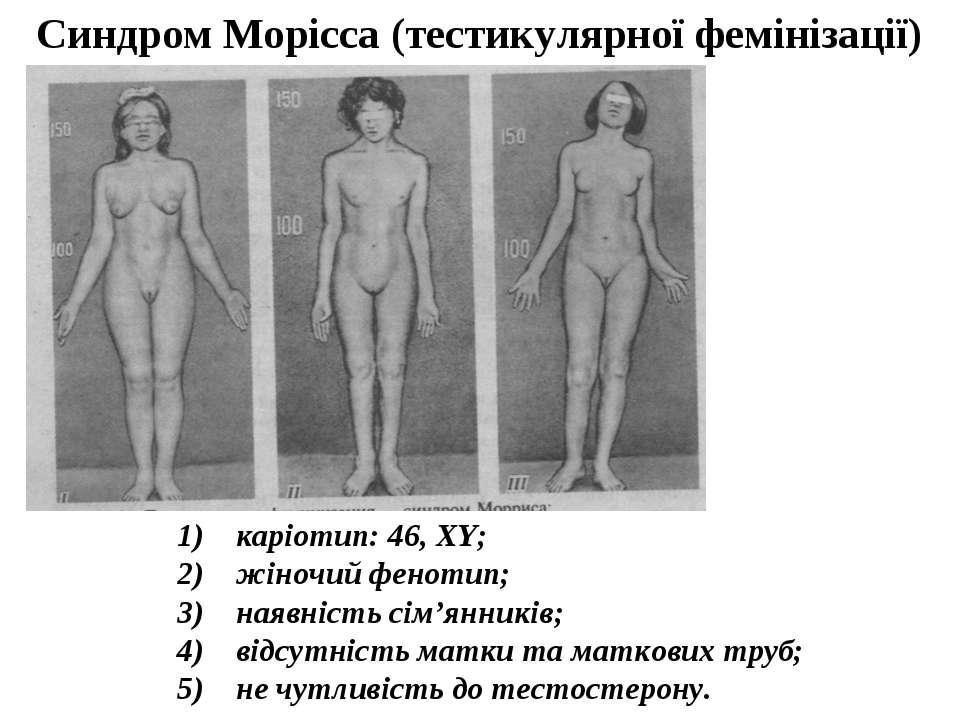 1) каріотип: 46, XY; 2) жіночий фенотип; 3) наявність сім'янників; 4...