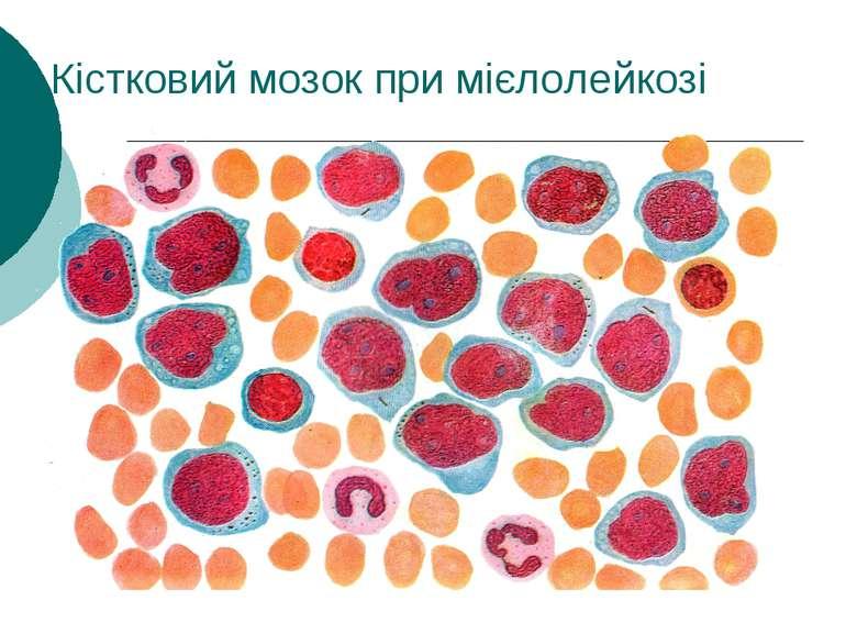 Кістковий мозок при мієлолейкозі