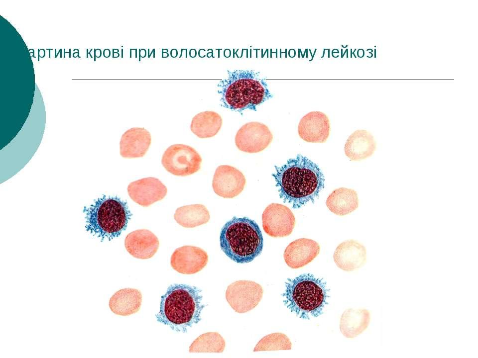 Картина крові при волосатоклітинному лейкозі