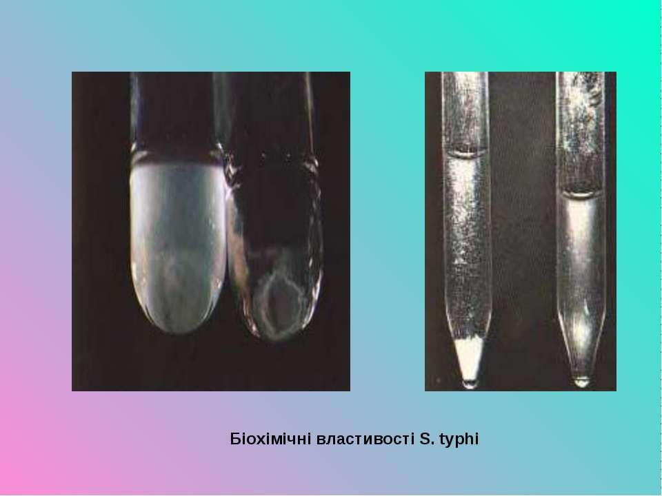 Біохімічні властивості S. typhi