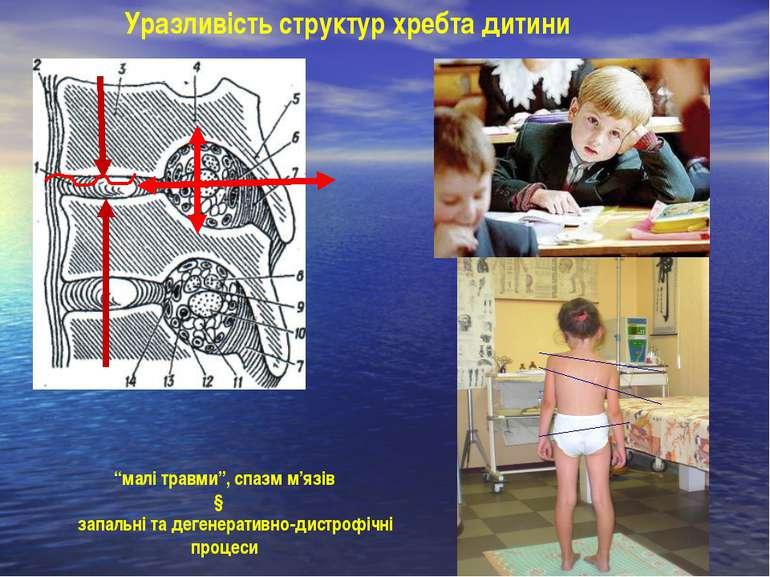 """Уразливість структур хребта дитини """"малі травми"""", спазм м'язів ↓ запальні та ..."""