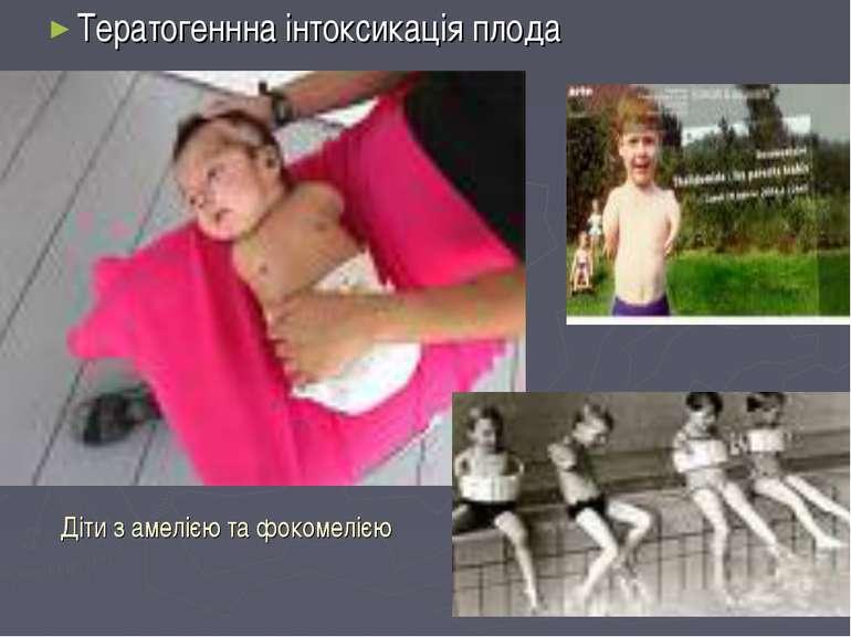 Діти з амелією та фокомелією Тератогеннна інтоксикація плода