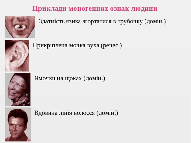 Приклади моногенних ознак людини Здатність язика згортатися в трубочку (домін...
