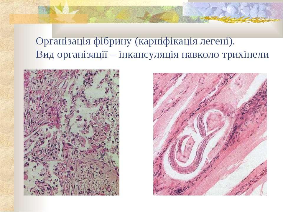 Організація фібрину (карніфікація легені). Вид організації – інкапсуляція нав...