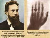 Рентгенівське випромінювання було відкрито у 1895 році німецьким фізиком Віль...