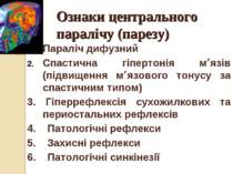 Ознаки центрального паралічу (парезу) Параліч дифузний Спастична гіпертонія м...