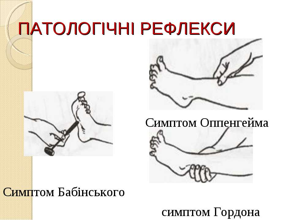 ПАТОЛОГІЧНІ РЕФЛЕКСИ Симптом Бабінського Симптом Оппенгейма симптом Гордона