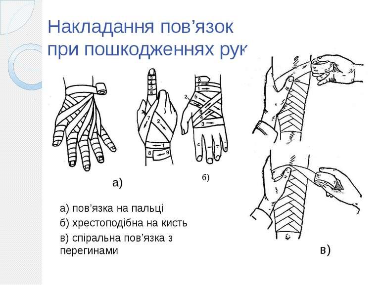 Накладання пов'язок при пошкодженнях рук б) а) пов'язка на пальці б) хрестопо...