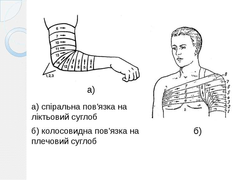а) спіральна пов'язка на ліктьовий суглоб б) колосовидна пов'язка на плечовий...