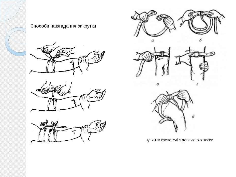 Способи накладання закрутки Зупинка кровотечі з допомогою паска
