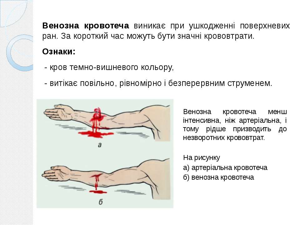 Венозна кровотеча виникає при ушкодженні поверхневих ран. За короткий час мож...