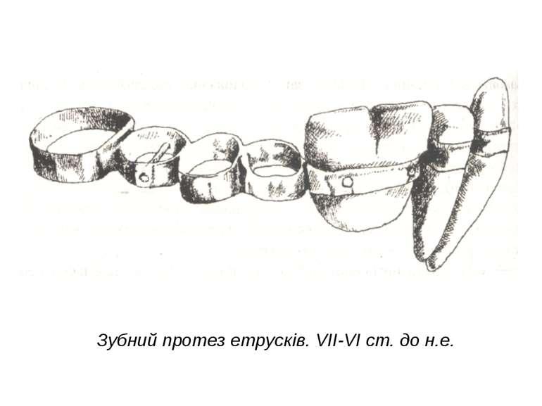 Зубний протез етрусків. VII-VI ст. до н.е.