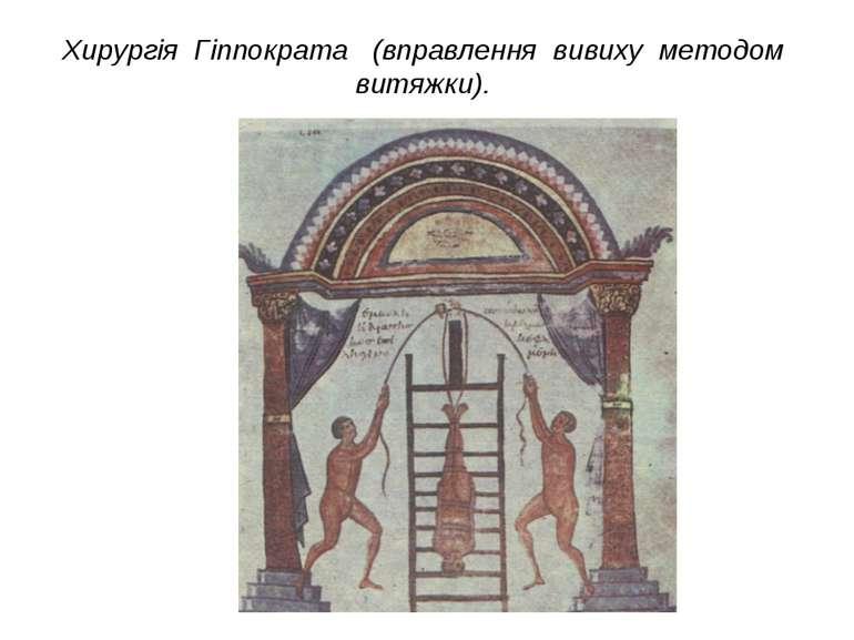 Хирургія Гіппократа (вправлення вивиху методом витяжки).