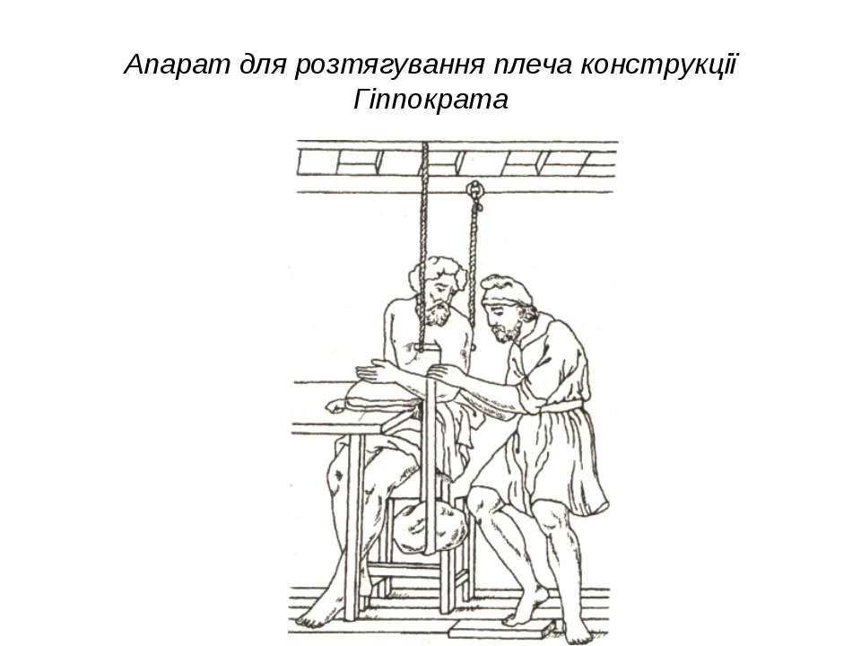 Апарат для розтягування плеча конструкції Гіппократа