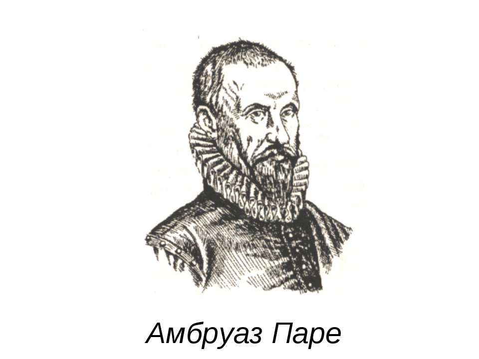 Амбруаз Паре