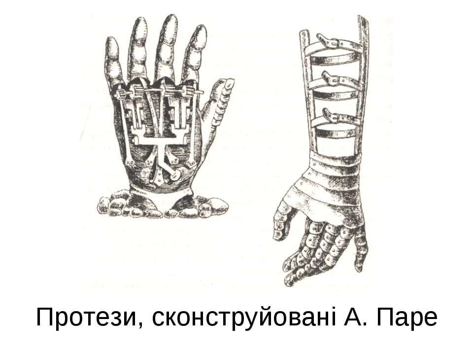 Протези, сконструйовані А. Паре