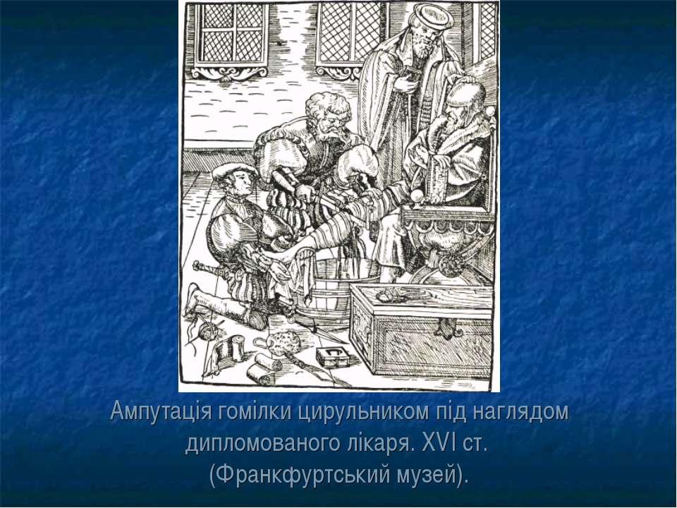 Ампутація гомілки цирульником під наглядом дипломованого лікаря. XVI ст. (Фра...