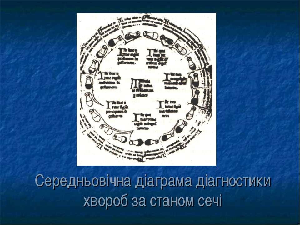 Середньовічна діаграма діагностики хвороб за станом сечі