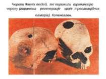 Черепи давніх людей, які пережили трепанацію черепу (виражена регенерація кра...