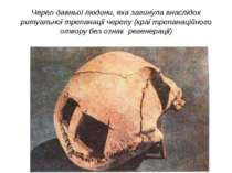 Череп давньої людини, яка загинула внаслідок ритуальної трепанації черепу (кр...