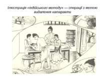 Ілюстрація «індійського методу» — операції з метою видалення катаракти