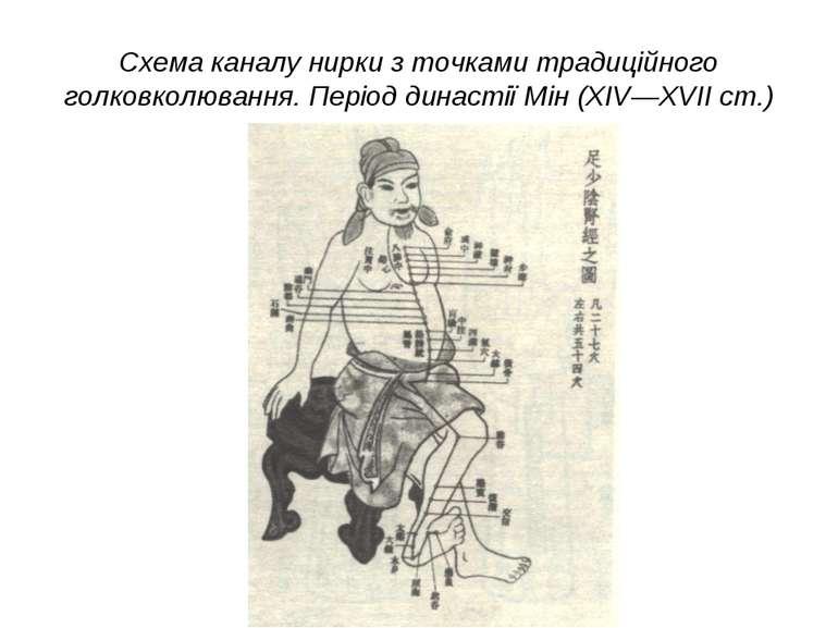Схема каналу нирки з точками традиційного голковколювання. Період династії Мі...