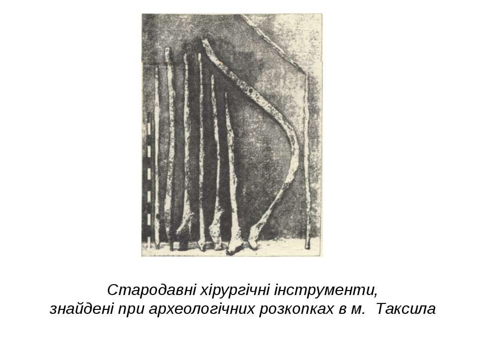 Стародавні хірургічні інструменти, знайдені при археологічних розкопках в м. ...