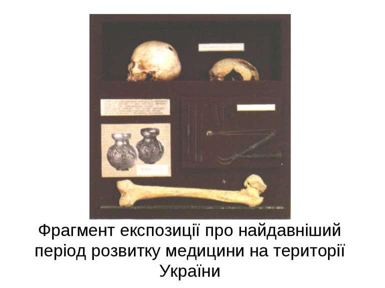 Фрагмент експозиції про найдавніший період розвитку медицини на території Укр...