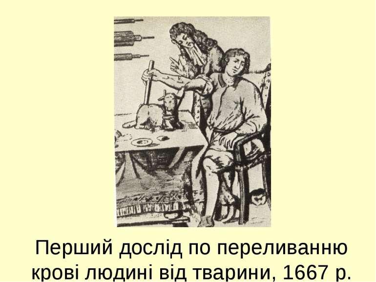 Перший дослід по переливанню крові людині від тварини, 1667 р.