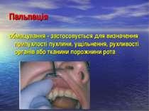 Пальпація обмацування - застосовується для визначення припухлості пухлини, ущ...