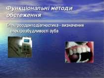 Функціональні методи обстеження Електроодонтодіагностика - визначення електро...