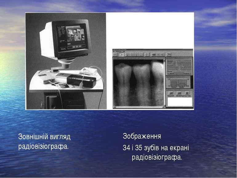Зображення 34 і 35 зубів на екрані радіовізіографа. Зовнішній вигляд радіовіз...